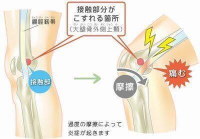 53cc248de3 腸脛靭帯炎とは、ランニングなどで膝関節の屈伸運動の繰り返しにより、大腿骨外顆(膝の外側)と腸脛靭帯が過度の摩擦をすることにより炎症を起こし痛みが出現してき  ...